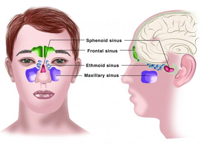 Homoeopathic Medicine for Sinusitis