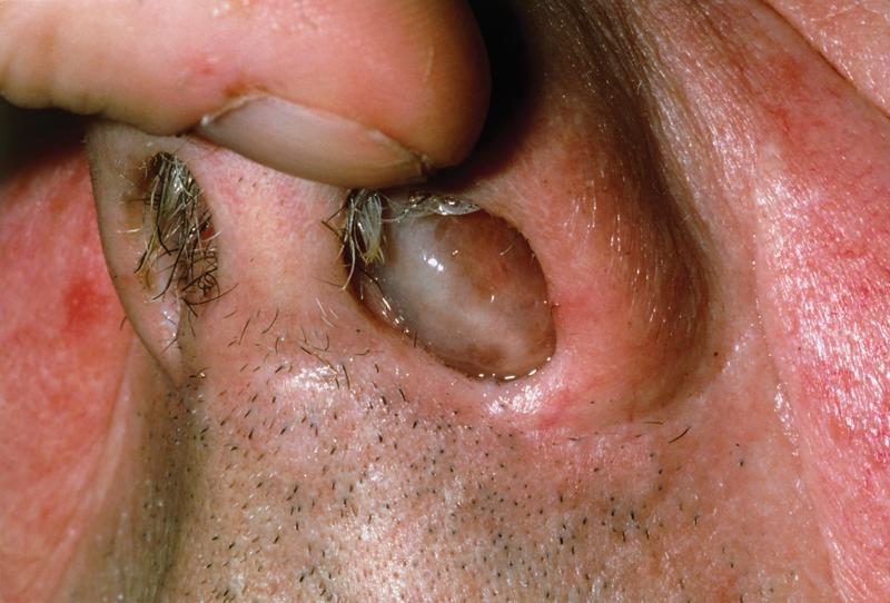Homoeopathic Medicine for Nasal Polyps